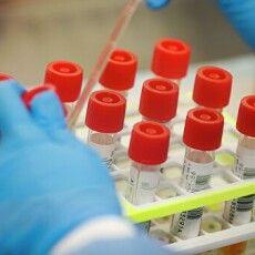 Підозра на коронавірус у Нововолинську не підтвердилася