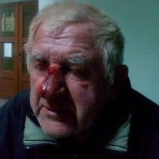 У Луцьку шукають нелюдів, які на проспекті Перемоги побили старенького