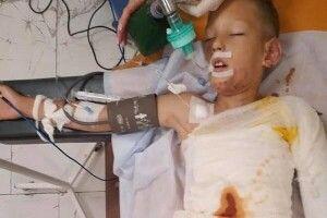У Дніпрі облили бензином і підпалили восьмирічного хлопчика