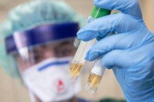 В Україні 1158 нових інфікувань коронавірусом, на Волині – 48