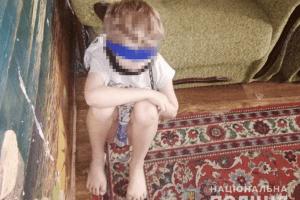 У Дніпрі жінка тримала сина на ланцюзі й обмотувала скотчем