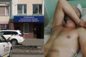 Підстрелений велосипедист у Рівному: куля влучила у ребро та розтрощила його на 12 уламків