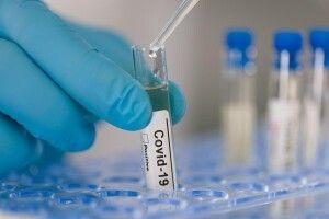 Україна додатково закупить 1,2 мільйона ПЛР-тестів для діагностики коронавірусу