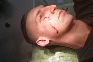 Самооборонівця поранили під час патрулювання Луцька