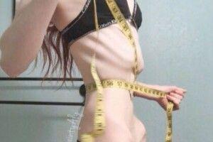 У 19років важила 29кг: наПрикарпатті  від анорексії померла дівчина