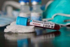 На Старовижівщині – ще одна смерть через коронавірус