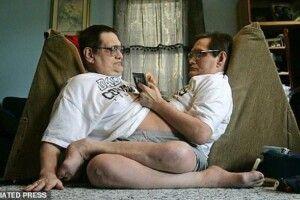 68 років у братів було одне  на двох тіло
