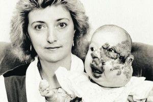 Дівчина пережила  18 операцій  ісама стала хірургом