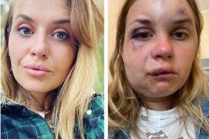 «Найстрашніше, що ніхто не зреагував»:  телеведуча дивом вижила після нападу ґвалтівника у потязі