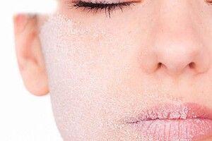 Холодної пори губи потребують особливого догляду