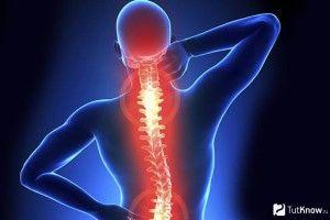 10 порад нейрохірурга,  як вберегти спину від болю