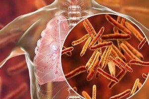 Учені винайшли ще один ефективний метод лікування туберкульозу