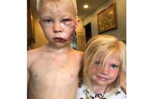 6-річний герой ціною власного здоров'я врятував сестричку від пса