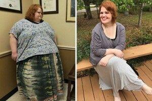 Чоловік схуд більш як на 300 кілограмів…