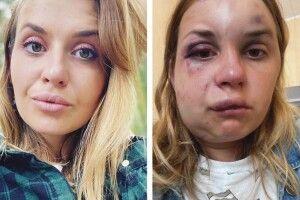 Журналістка, яку жорстоко побив іледь незґвалтував п'яний упоїзді, відсудила 100тисяч