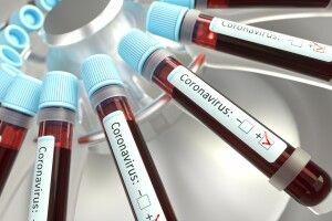 В Україні зафіксовано 310 випадків коронавірусу. На Волині – два, на Рівненщині – 9