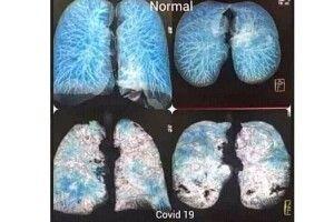За добу на COVID-19 захворіло більше сотні волинян. А скільки інфікованих не виявлено?