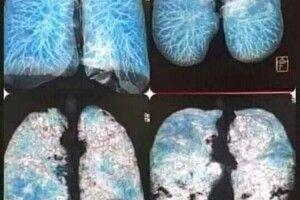 «Як матове скло». Медики показали легені людини з COVID-19