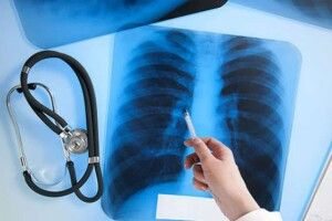 Рівень захворюванності на туберкульоз у Рівному зростає