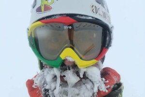 «Мій писок на 22-й годині пошуків»: гірський гід показав, як обморозив лице, шукаючи туриста на Закарпатті