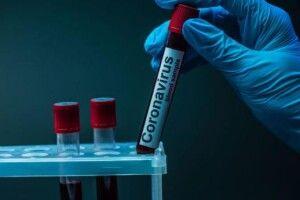 17 хворих і одна смерть: яка ситуація з коронавірусом в Нововолинську