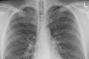 За тиждень на пневмонію захворіли 377 волинян