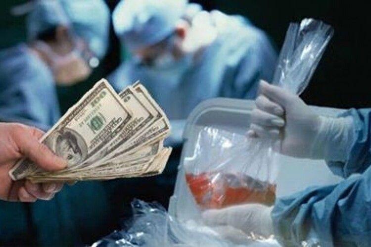 В українця забирали нирку за 15 тисяч доларів, а збували вже – за 150 тисяч «зелених»