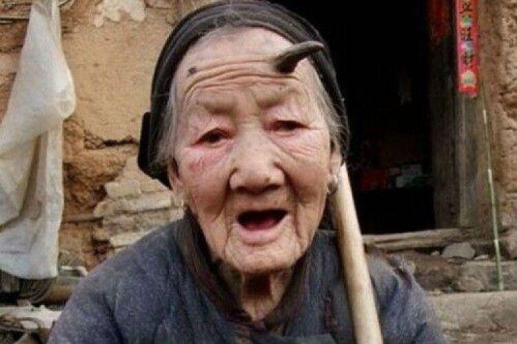 У бабусі на голові виріс... ріг (Фото 18+)