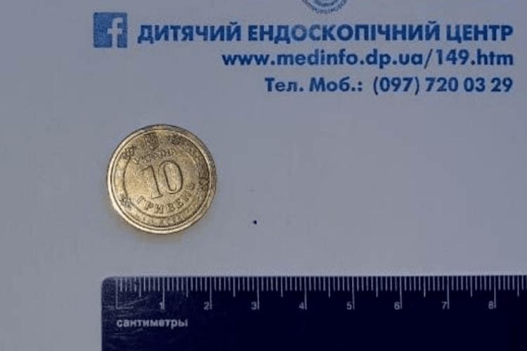 Ендоскопісти витягали зі стравоходу восьмирічної дитини 10-гривневу монету