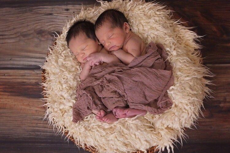 Лікарі розділили сіамських близнюків (Фото)