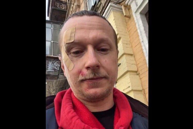 У центрі Києва побили журналіста Романа Вінтоніва (Майкла Щура)