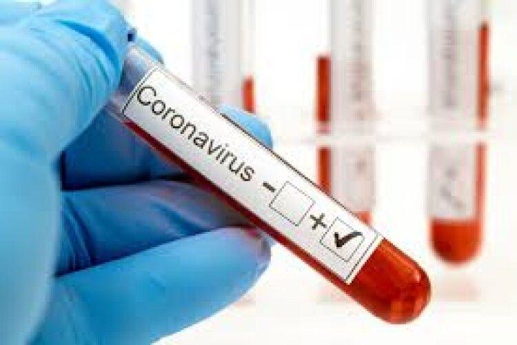 На Волині коронавірусом заразилися ще пів тисячі людей. Четверо інфікованих померло