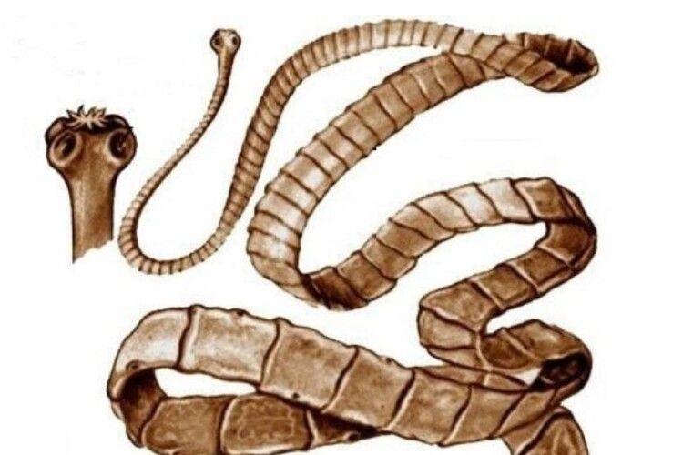 У тілі рівнянина жив метровий черв'як