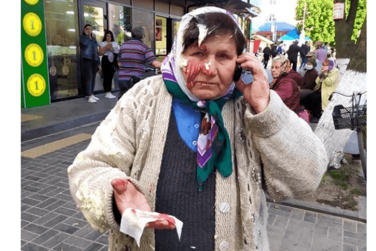 Бізнес-вумен вдарила пенсіонерку по голові банкою зі сметаною (Фото)