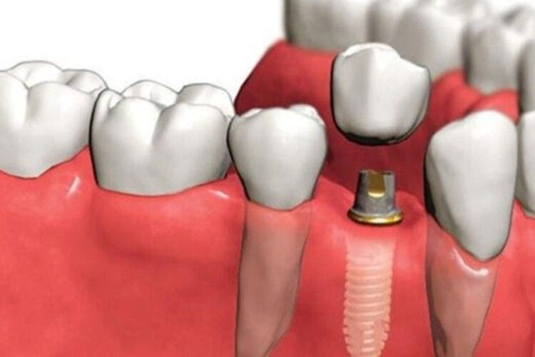 Як відновити зуб за один день?