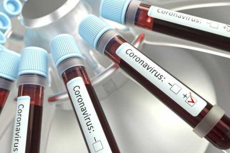 У Туреччині розробили тест, який визначає штами COVID-19 за 3 години
