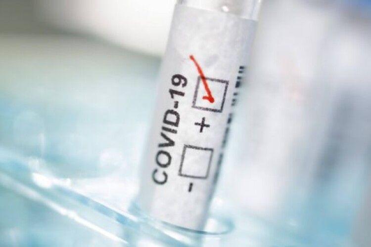 Волинян відправляють робити тести на COVID у приватні лабораторії: чому