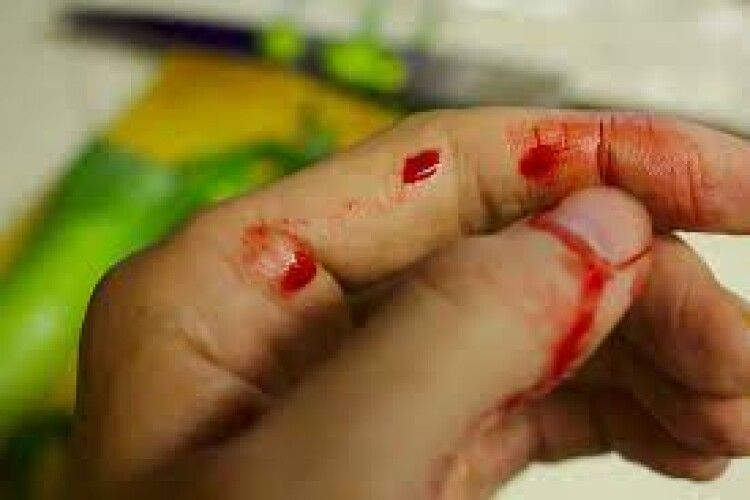 Волинянка встромила чоловіку ножа в живіт