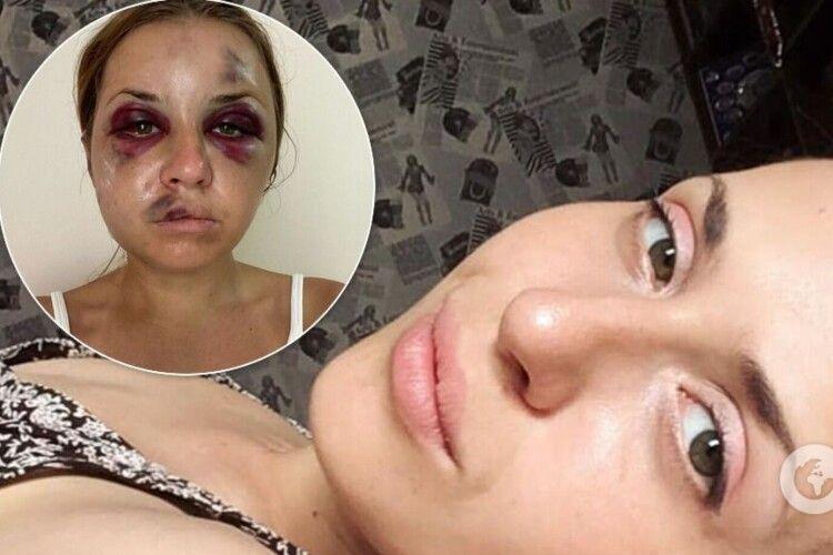 У СІЗО помер чоловік, який побив та хотів зґвалтувати Анастасію Лугову в поїзді