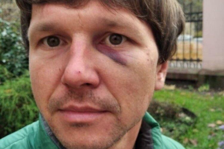У Львові на ветеранів АТО напали троє поліцейських з Волині, Чернівців і Тернополя