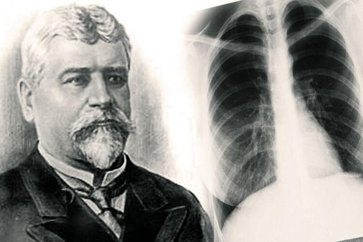 Руки професора Образцова заміняли рентген