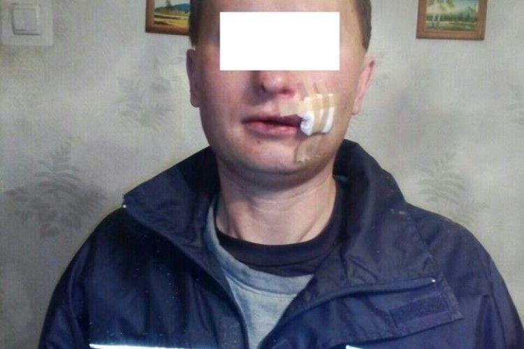40-річний лучанин прийшов на побачення – натомість одержав лупня (фото)