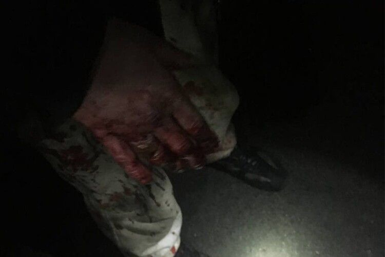 Вистежили по крові: у Луцьку 23-річний чоловік намагався обікрасти магазин (Фото)