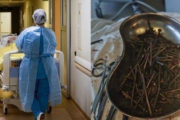 У чоловіка вшлунку виявили кілограм шурупів іцвяхів
