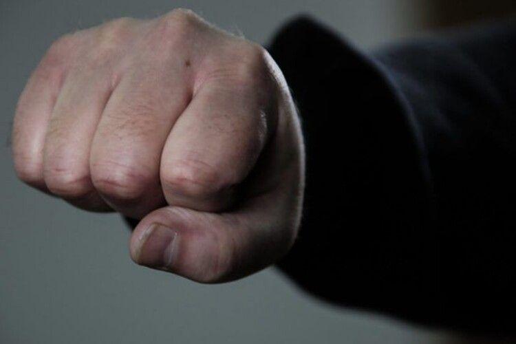 Біля магазину у Володимир-Волинському районі чоловікові проломили череп: він у лікарні