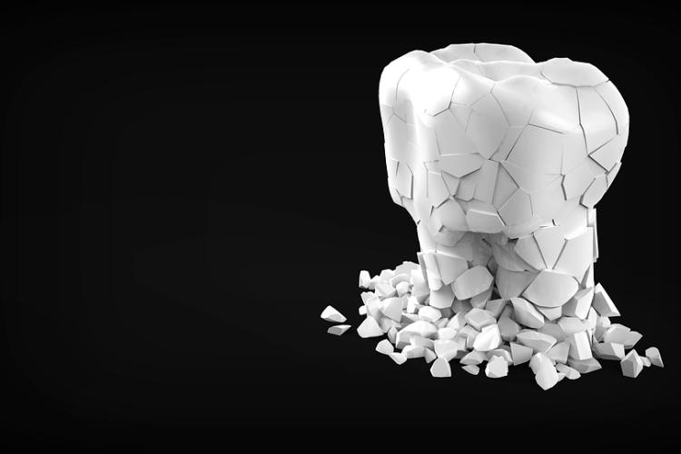 Через COVID-19 можуть випасти зуби