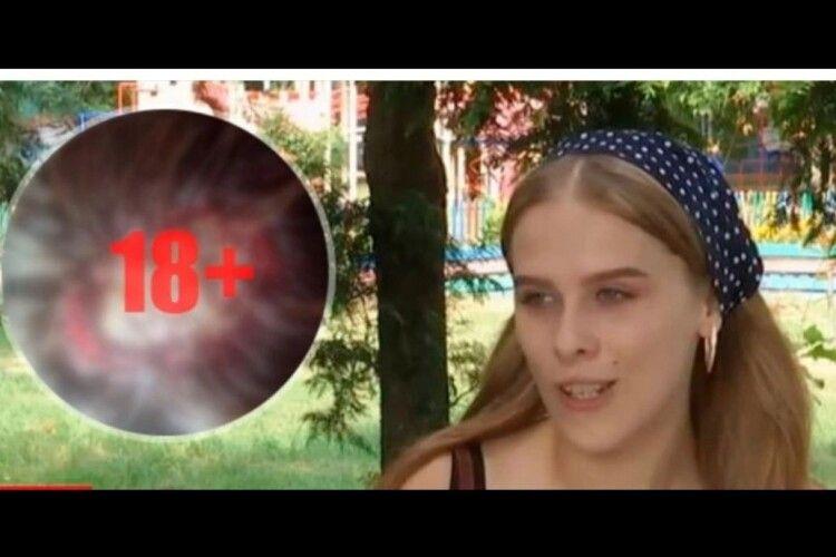 Перукарка так пофарбувала 18-річній дівчині волосся, що їй тепер потрібна пересадка шкіри