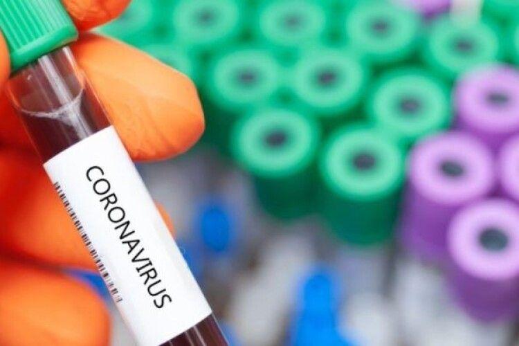 За добу на Волині виявили 42 нових випадки інфікування COVID-19