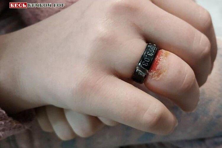 Бійцям ДСНС довелося болгаркою розпилювати каблучку на розпухлому пальці 14-річної дівчини (Відео)