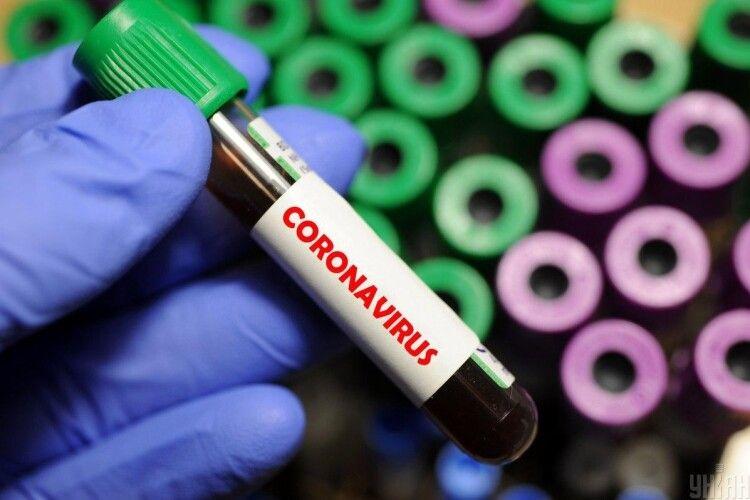 За вчорашній день на Горохівщині  виявлено 7 випадків COVID-19